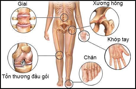 chua-dau-nhuc-xuong-khop