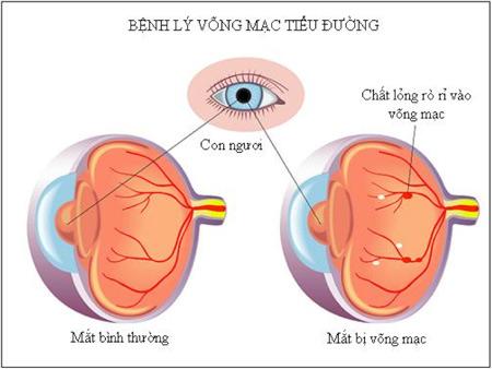 benh-vong-mac-dai-thao-duong