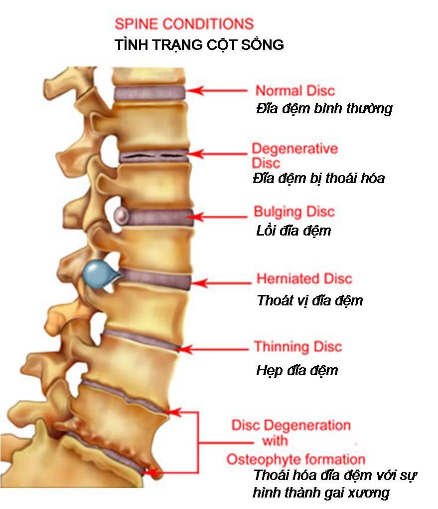 thoai-hoa-cot-song