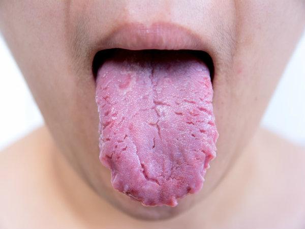 [Cạo lưỡi]                                           Điều gì xảy ra nếu bạn không vệ sinh lưỡi                                     4881