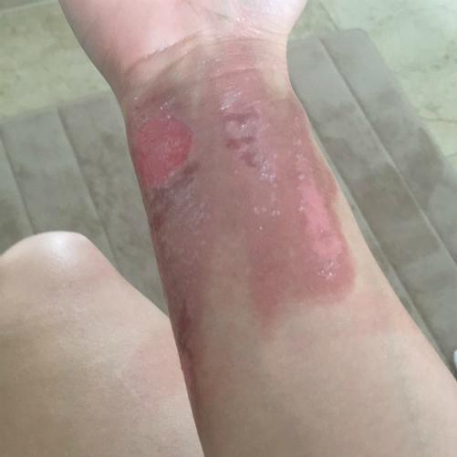 [Tinh dầu]                                           Cảnh báo của cô gái Mỹ gốc Việt khi dùng tinh dầu                                     4913