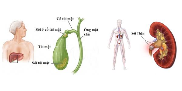 [Trị sỏi mật]                                           Những thảo dược dễ tìm trị sỏi mật, sỏi thận                                     4691
