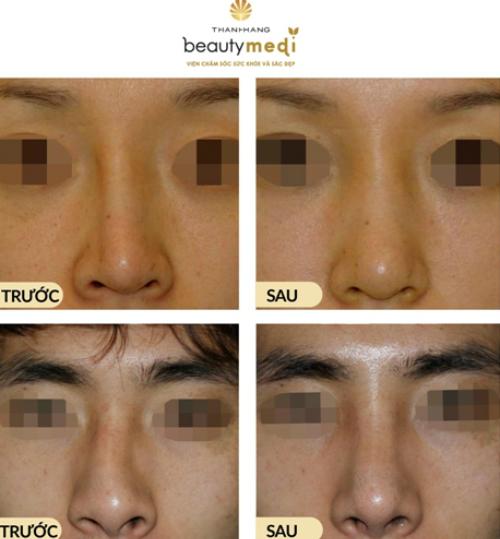 [Viện chăm sóc sức khỏe và sắc đẹp Thanh Hằng Beauty Medi] Khắc phục nguy cơ biến chứng có thể xảy ra do phẫu thuật mũi 4812