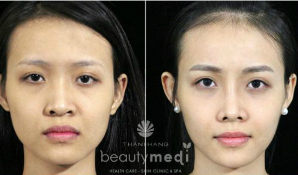 [Viện chăm sóc sức khỏe và sắc đẹp Thanh Hằng Beauty Medi] Khắc phục nguy cơ biến chứng có thể xảy ra do phẫu thuật mũi 4813