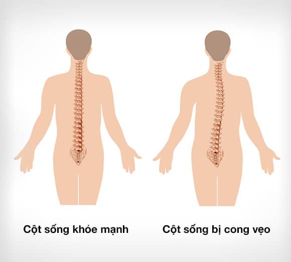 veo-cot-song